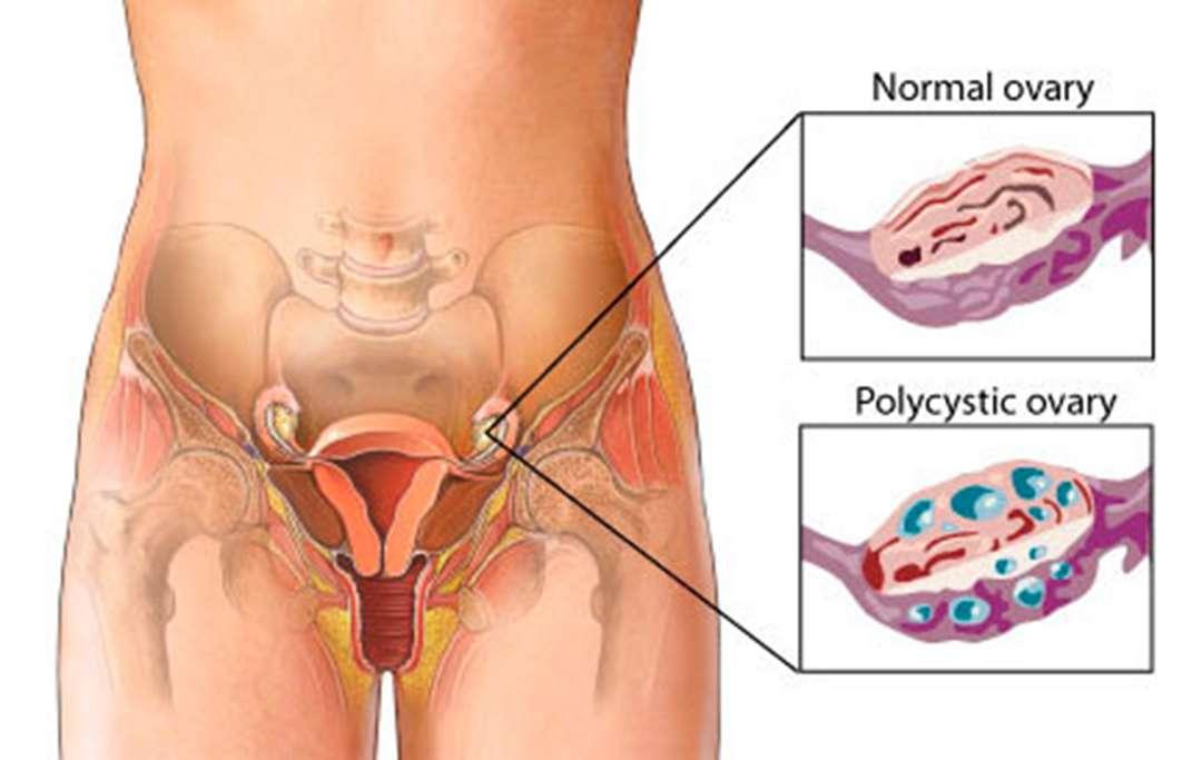 PCOS-polycystic-ovarian image vs regular ovaries